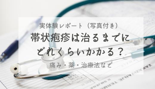 帯状疱疹が治るまでの期間は?痛みや薬など実体験レポート(写真有)